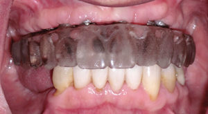 The initial laboratory case was returned with a clear duplicate that was stored to be used at a later date. The clear duplicate was retrieved and inserted in the patient's mouth. The duplicate was hand-tightened over the multi-unit abutments (MUA)