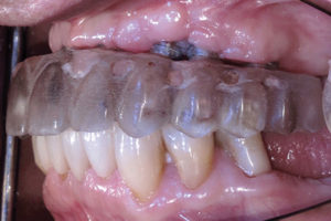 A gap was noted between the clear duplicate and the alveolar ridge due to tissue shrinkage during normal healing