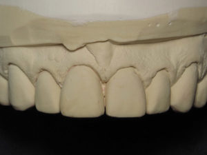 Frontal view of prepared teeth with retracted gingiva