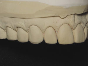 Right lateral view of prepared teeth with retracted gingiva