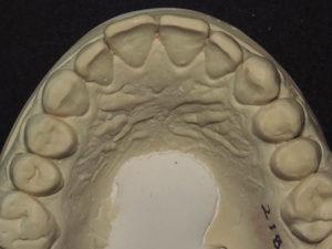 Occlusal view of prepared maxillary teeth