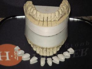 Mandibular sectioned model and utra-thin Veneers
