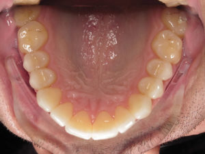 Post-operative occlusal view of the maxillary arch