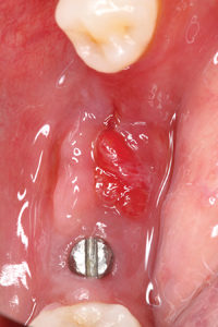 Occlusal clinical view of LR ridge with granulomatous tissue.