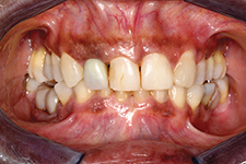 Initial frontal clinical view in occlusion with shifted midline, maloccluding posterior teeth.