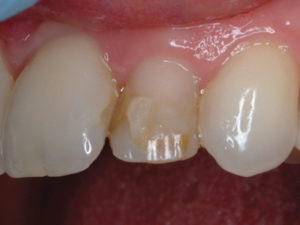 After examination and microabrasion, it was found that the buccal surface was partially natural tooth structure and partly composite