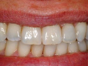 The patient's esthetic smile was restored within their financial means