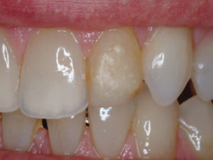 The patient's smile was compromised by a single unesthetic tooth