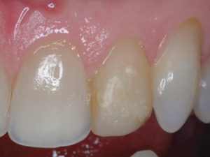 The left lateral had previously been fractured and restored with resin that had stained and pitted over the years