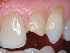 The old restoration was partly removed, leaving some buccal tooth structure and mostly old composite