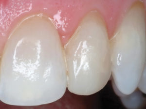A close-up reveals an esthetic restoration, which should provide years of predictable function