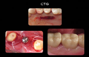 Autogenous sub-epithelial connective tissue harvested from the palate is placed around a deficient implant. Note increase in keratinization.