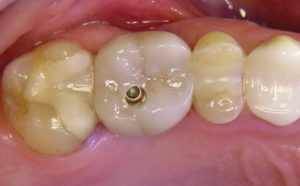 Screw-retained crown eliminating the need for cement.