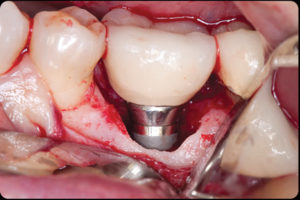 Effect of excess cement leading to circumferential bone loss around the dental implant.