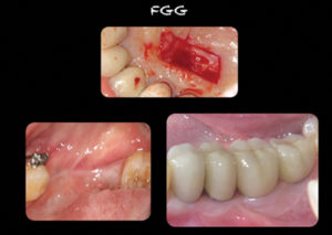 Autogenous free gingival graft. Note the absence of keratinized tissue prior to surgery. A resultant band of thick healthy tissue develops following the graft.