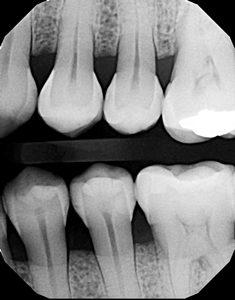 ward-figure-14-pre-operative-radiograph