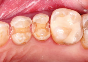 ward-figure-16-first-molar-restored-with-glass-ionomer