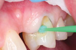 ward-figure-3-treatment-of-dentin-with-polyacrylic-acid