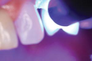 ward-figure-8-light-curing-resin-sealant