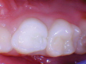 Pre-operative view of upper first primary molar.