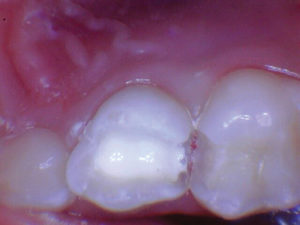 2-3 mm layer of Biodentine was placed followed by a layer of Ionoseal (Voco) to prevent washout of MTA when proceeding with the restorative process.