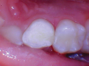 After acid etching and using bonding agent Scotchbond Universal (3M), the two upper primary molars were restored with Activa Bioactive Restorative A2.