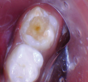 Once the decay was excavated and margins placed on solid surfaces, a heavy bevel was placed in the enamel to increase bond strength and marginal integrity. The central dark area was solid. The tooth was lined with Activa base/liner.