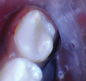 After selective etching and using Scotchbond Universal, the tooth was restored with Activa Restorative A2.
