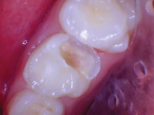 The decay was excavated and all undermined enamel was removed.