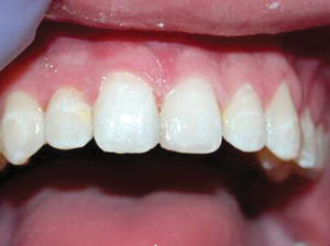 After placement of two Bioclear matrices, the teeth were lightly beveled, acid etched and bonded with Scotchbond Universal. Activa Bioactive Restorative A2 was placed and cured. The teeth restorations were then finished and polished.