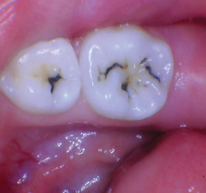 Post SDF presentation of the lower right primary molars showing arrested lesions.