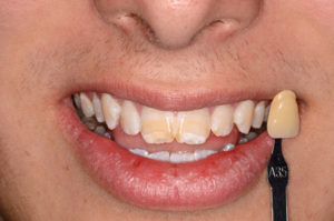 Shade tab showing the base shade of the teeth. The yellow and white banding is very visible. The aetiology is thought to be antibiotics given as a child.