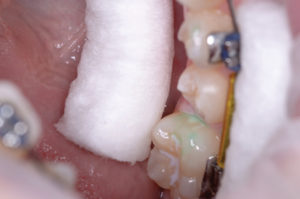 The early caries have been dramatically reduced.