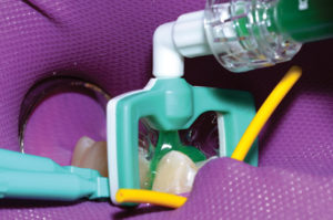 Icon etchant is applied to the tooth for two minutes.