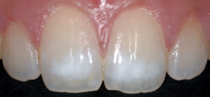Large white lesion prior to treatment. This is an advanced case due to the large opaque nature of the white area.
