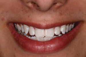 Results after two weeks of whitening. Notice that the white has totally faded and the white appears whiter. There were enamel surface defects on the surface of the teeth.