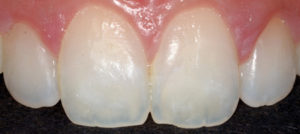 Following whitening treatment, the white mark was removed with Icon resin infiltrant. This was treated in three treatment sessions to remove the area completely.