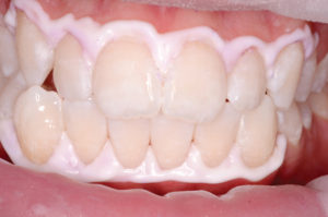 Teeth are rehydrated with water in between each application.