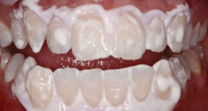 Amorphous Calcium phosphate is applied to the teeth after the microabrasion session to strength the enamel. The ACP is absorbed into the surface defects to assist with improving the enamel surface texture.