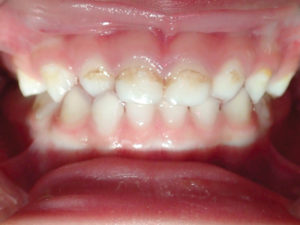 Moderate decay of primary anterior teeth.
