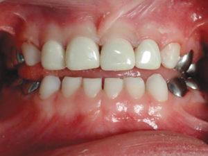 Completed restorative treatment (Fig. 8), including zirconia crowns on the primary anterior teeth.