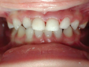 Composite restoration of moderate decay on primary anterior teeth.
