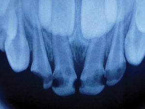 Radiograph of extensive caries on primary anterior teeth.