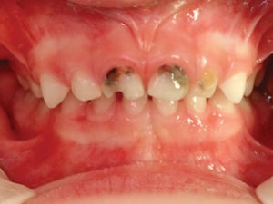 Caries on primary anterior teeth requiring aesthetic restoration.