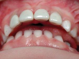 Zirconia crowns (NuSmile) restoring caries on primary anterior teeth (Fig. 6).