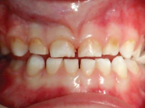 Extensive decay in the primary anterior dentition.