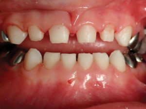 Preparation of primary anterior teeth for zirconia crowns.