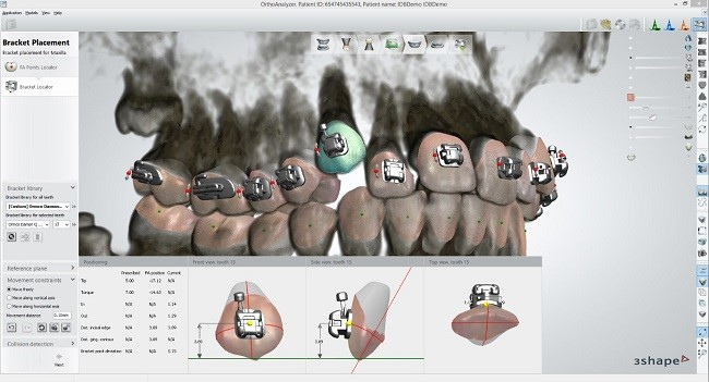 3Shape Orthodontic Software Integrates with Ormco Damon