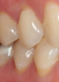Non-carious cervical lesion commonly associated with abrasion, excessive occlusal forces, and a low pH.