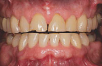 Attrition indicative of bruxism